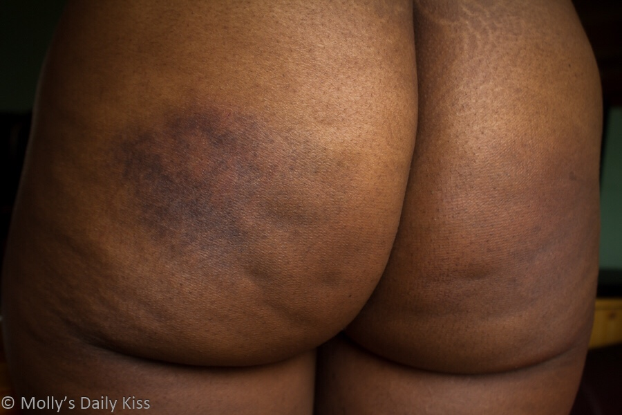 Cara's makes bottom with bruises on it in post titled Bruise Me